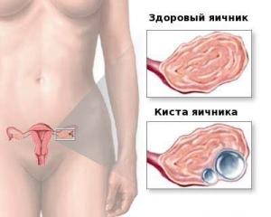 Каковы причины, симптомы и лечение кисты яичника у женщины?