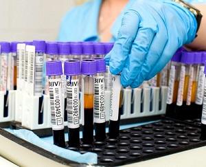 О чем говорит повышенный уровень лейкоцитов в мазке у женщин