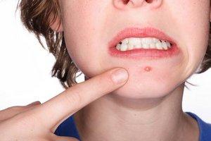 О причинах появления болезненных прыщей на подбородке у женщин
