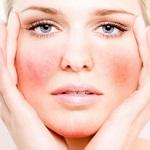 Причины появления купероза на лице и несколько способов от него избавиться