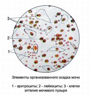 Причины повышенных лейкоцитов в моче у женщин: за что отвечают и как выяснить их уровень?