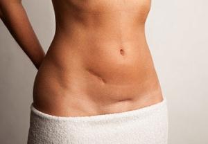 Симптомы рака яичников у женщин: методы лечения