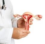 Что такое внутренний эндометриоз матки и способы лечения болезни