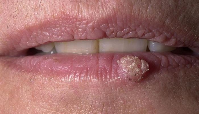 Симптомы и признаки вируса папилломы человека у женщин на теле и лице: фото
