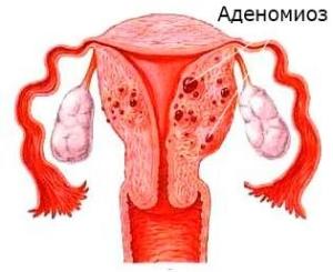 Диффузный аденомиоз: особенности развития болезни, формы
