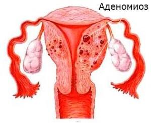 Аденомиоз - что это такое, формы и степени заболевания
