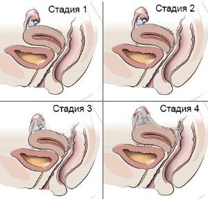 Стадии развития и первые проявления аденомиоза матки