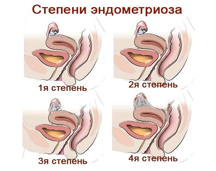 Эндометриоз матки - что это такое доступным языком: степени и виды