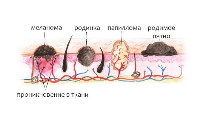 вирус папилломы человека 44 типа у женщин