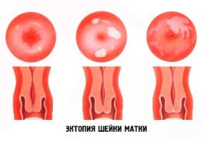Эрозия шейки матки при беременности и в чем ее отличие от эктопии?
