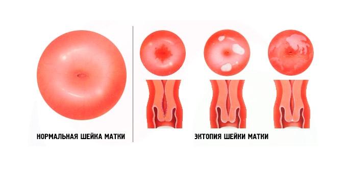 Эктопия шейки матки: что это такое, в чем заключается лечение