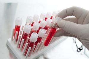 Биопсия шейки матки при эрозии: подготовка к процедуре