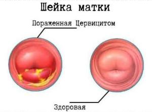 Эрозия шейки матки: код по мкб 10, причины развития заболевания
