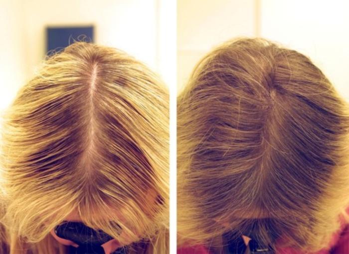 Кокосовое масло для сухих, кудрявых, поврежденных волос - способы применения