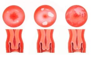 Эрозия шейки матки: код по мкб 10, виды патологии