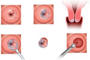 Описание заболевания врожденная эрозия шейки матки