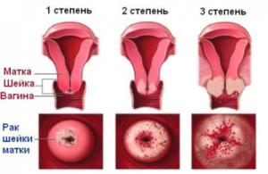 Факторы риска при возникновении рака шейки матки