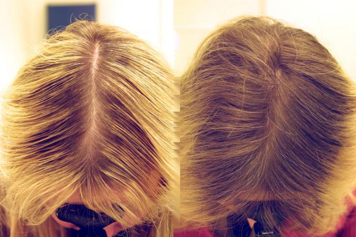 Как использовать перцовое масло для волос от перхоти