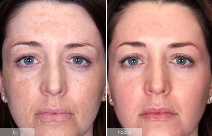 Пилинг с кислотами: фото до и после процедуры