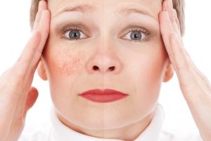 Яблочный и другие натуральные скрабы для лица: противопоказания и меры предосторожности