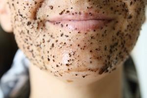 Скраб для лица от черных точек: как выбрать?