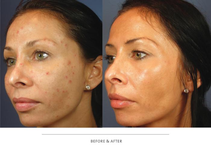 Салициловый пилинг: фото до и после применения