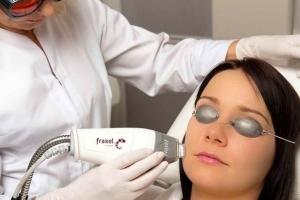 Лазерный пилинг кожи лица: этапы проведения процедуры