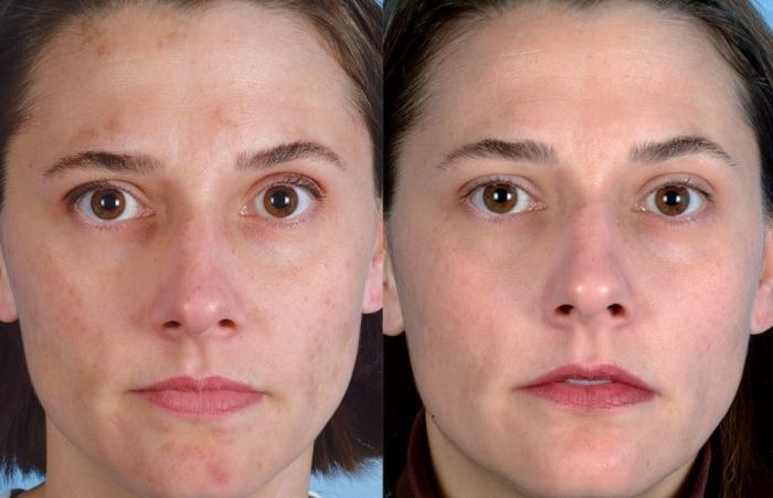 Лазерный пилинг кожи лица: фото до и после процедуры