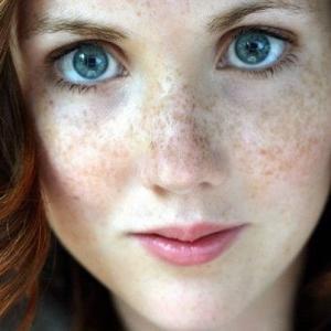 Пилинг от пигментных пятен: причины появления пигментации кожи лица