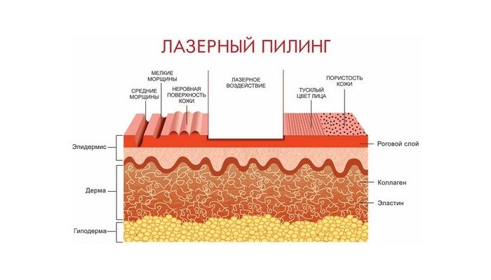 Лазерный пилинг кожи лица: действие процедуры