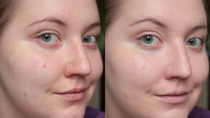 Миндальный пилинг для лица: фото до и после процедуры