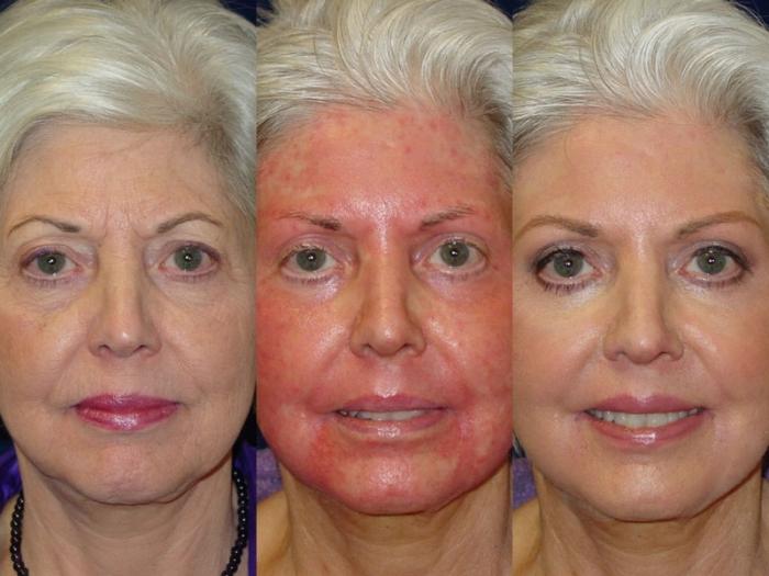 Глубокий пилинг лица: фото до и после процедуры