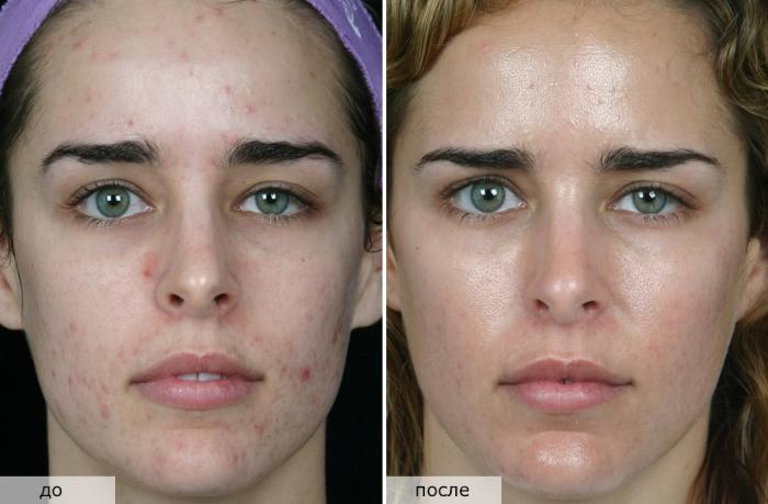 Пилинг в салоне: фото до и после