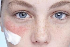 Лицо после пилинга: лечение последствий и осложнений