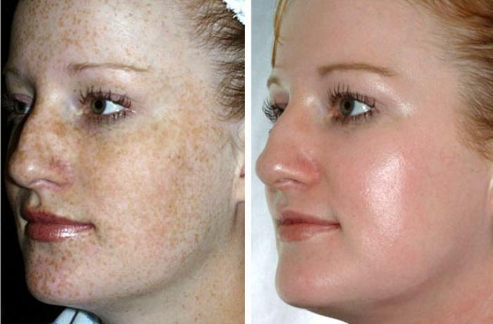 Противопоказания к энзимному пилингу кожи лица