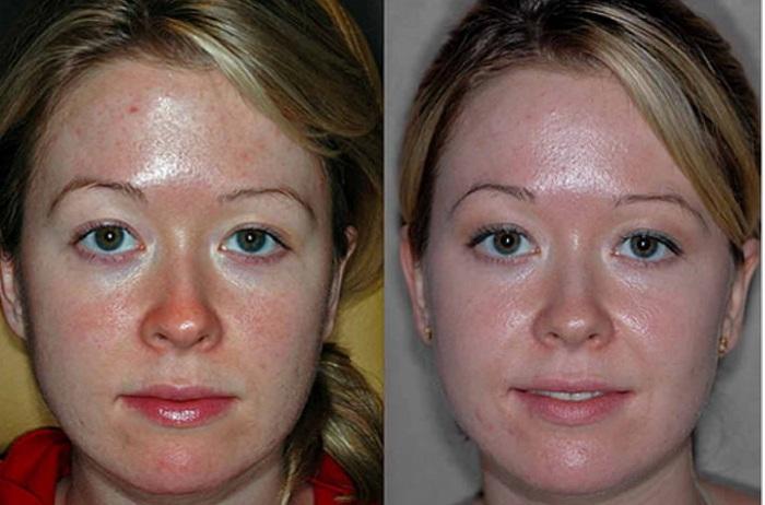 Как воздействует на кожу энзимный пилинг