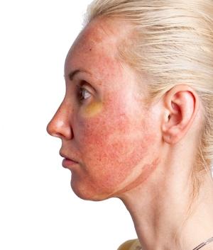Лучшие пилинги для лица: глубокий химический