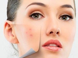 Покраснения после пилинга кожи лица