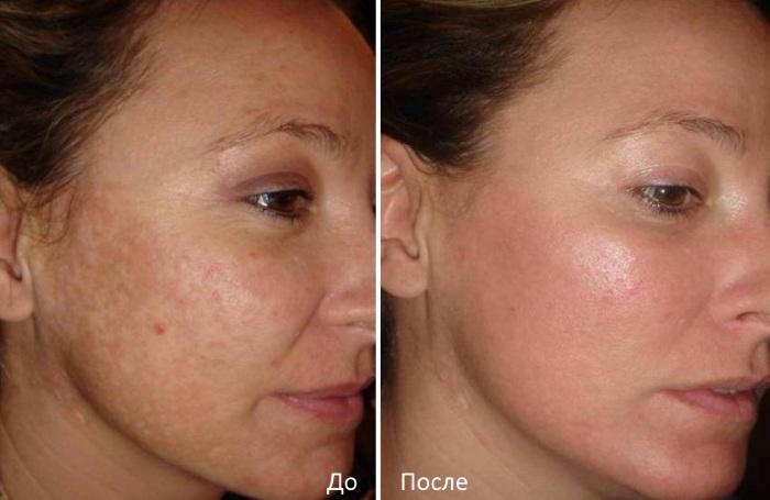Карбоновый пилинг лица - эффективность и результаты