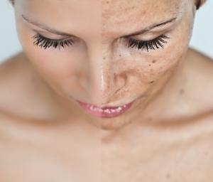 Пилинг кожи лица: суть косметической процедуры