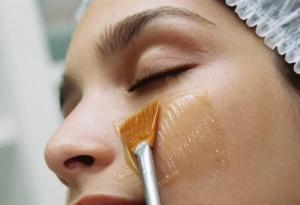 Пилинг кожи лица: с какого возраста делают?
