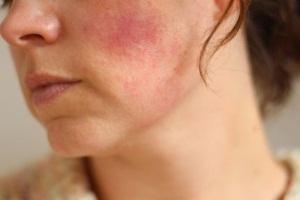 Противопоказания для масок из авокадо для кожи лица
