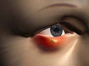 Симптоматика ячменя на глазу - как определить заболевание