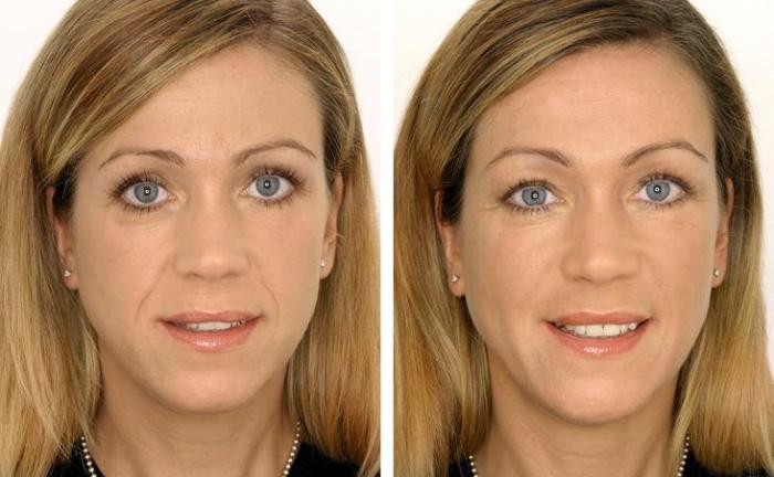 Эффективность контурной пластики лица на фото