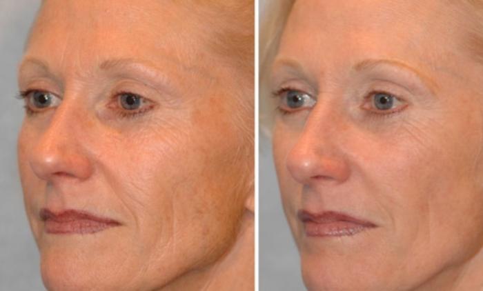 Фото до и после биоревитализзации лица