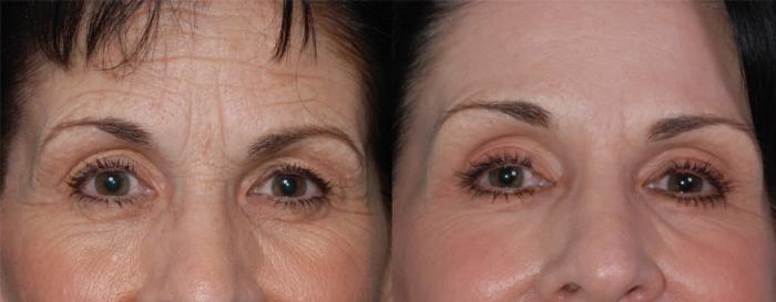 Фото результатов после курса проведения RF-лифтинга лица