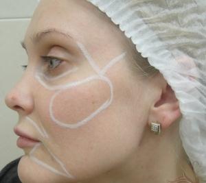 Как проходит процедура контурной пластики лица?