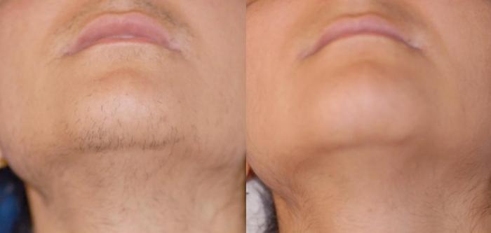 Лазерная эпиляция зоны роста бороды