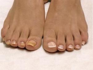 Меры профилактики рецидивов врастания ногтей на ногах