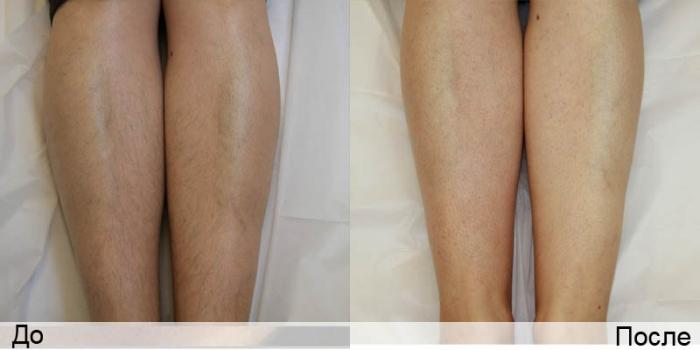 Ноги до и после лазерной процедуры эпиляции